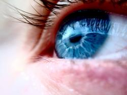 CASTING: People with Wet AMD